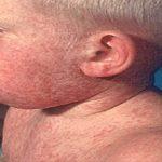Кір - висококонтагіозне гостре вірусне захворювання.