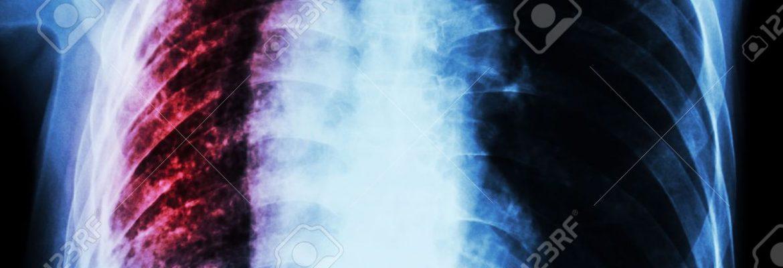 Туберкульоз.