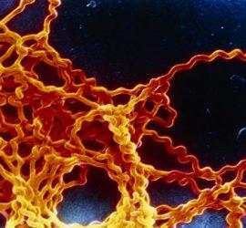 Збудник лептоспірозу при електронній мікроскопії